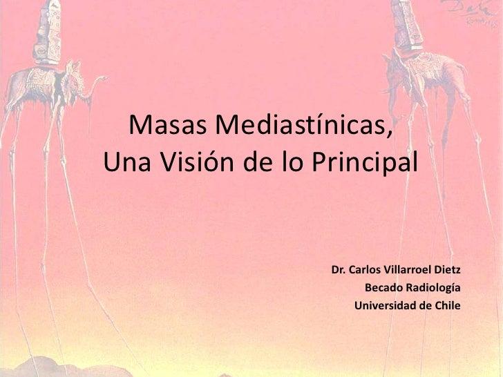 Masas Mediastínicas, Una Visión de lo Principal<br />Dr. Carlos Villarroel Dietz<br />Becado Radiología<br />Universidad d...