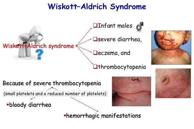iskott aldrich syndrom association - 638×426