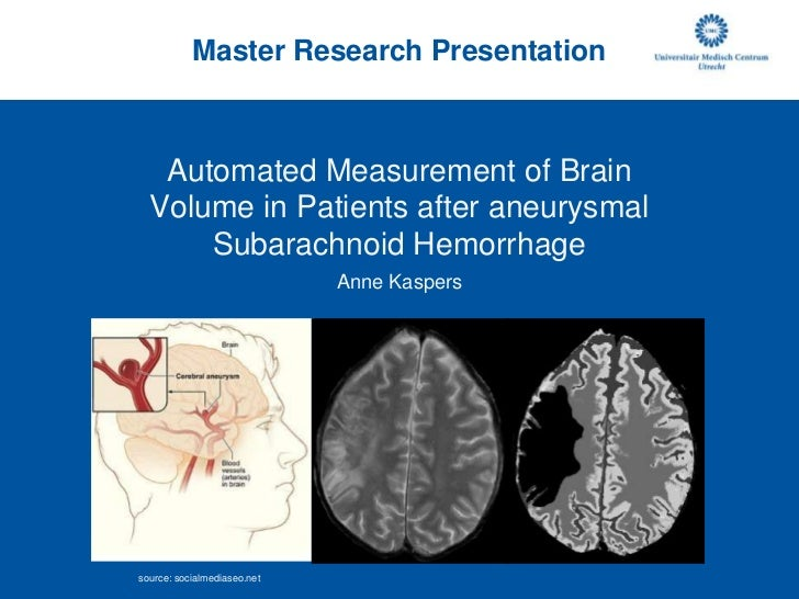 Master Research Presentation<br />Automated Measurement of Brain Volumein Patients after aneurysmal Subarachnoid Hemorrhag...