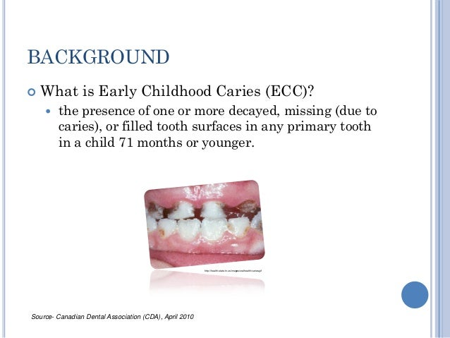 outline early childhood caries Purpose: the objective of this qualitative pilot study was to gain an in-depth understanding of dental hygienists and dentists perspectives regarding children's oral health and what needs to be done to prevent early childhood caries (ecc), the most frequent chronic disease of childhood.