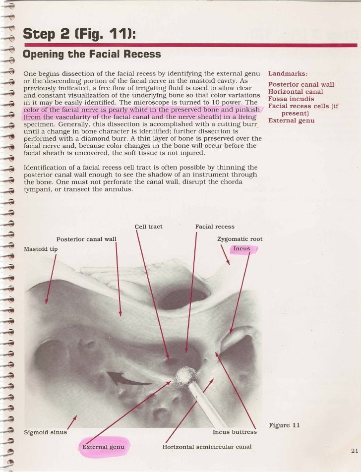 Old Fashioned Facial Recess Anatomy Image Collection Anatomy And