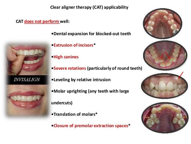 Materials used in Orthodontics _ Dr. Nabil Al-Zubair