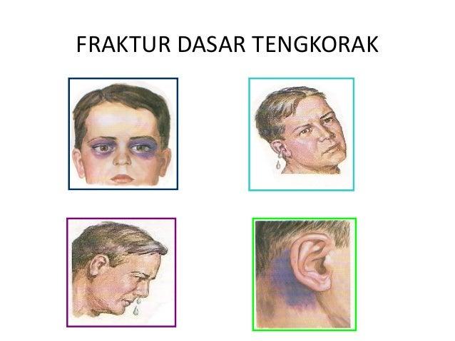 FRAKTUR BASIS CRANII ADALAH EBOOK DOWNLOAD