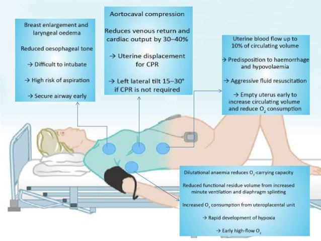 Resuscitation • Management of the collapsed pregnant woman should follow the standard ABCDE approach to resuscitation of a...