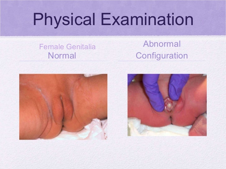 Double Reproductive Organ (2 uteruses, cervix, vagina ...
