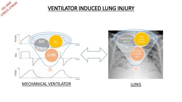 VENTILATOR INDUCED LUNG INJURY F/RR ∆P/ PEEP VT COLLPAS E/OPENI NG INHOMOGE NEITY/ RISESTRESS RS BABY LUNG/ EDEMA MECHANIC...