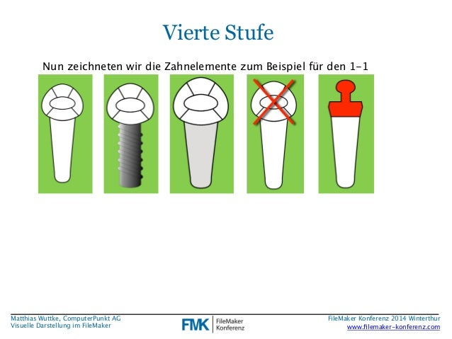 Matthias Wuttke, ComputerPunkt AG  Visuelle Darstellung im FileMaker  Vierte Stufe  Nun zeichneten wir die Zahnelemente zu...