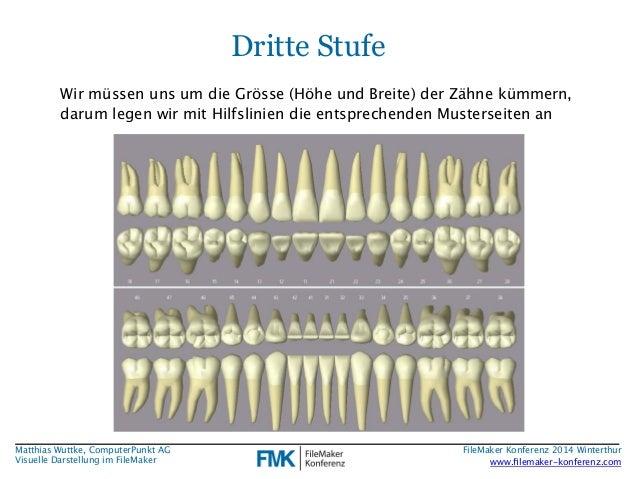 Matthias Wuttke, ComputerPunkt AG  Visuelle Darstellung im FileMaker  Dritte Stufe  Wir müssen uns um die Grösse (Höhe und...