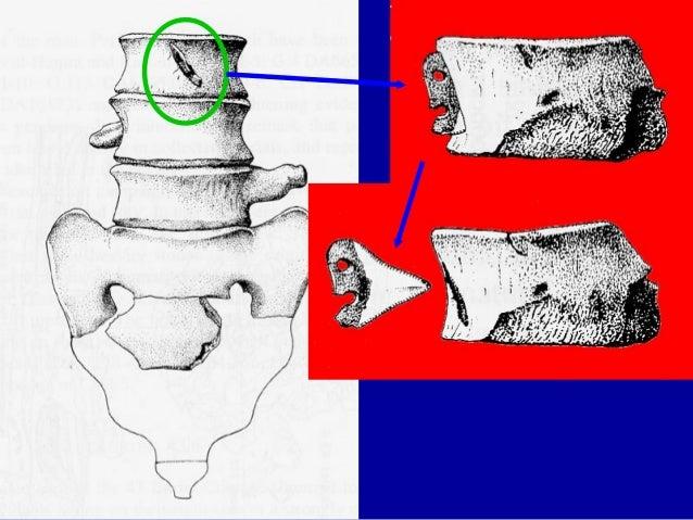 Suse D: vase à la cachette (Musée du Louvre) vers 2600 av. J.-C.
