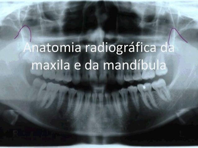 Anatomia radiográfica da maxila e da mandíbula