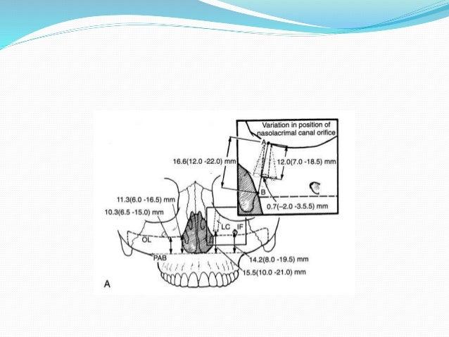 maxillary osteotomies