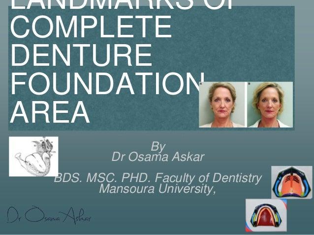 LANDMARKS OF COMPLETE DENTURE FOUNDATION AREA By Dr Osama Askar BDS. MSC. PHD. Faculty of Dentistry Mansoura University,
