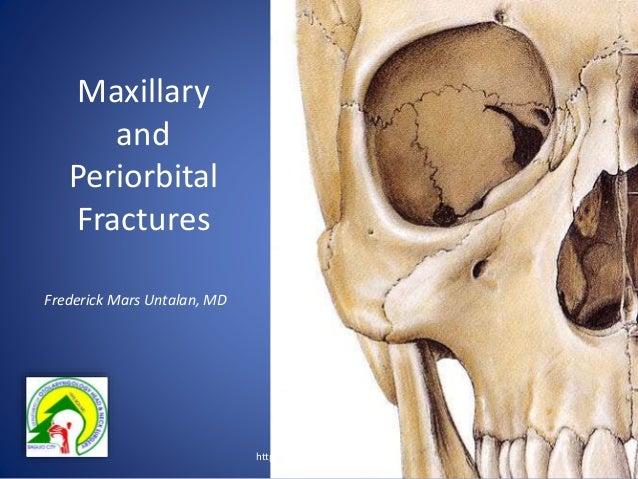 Maxillary and Periorbital Fractures Frederick Mars Untalan, MD http://entbgh.blogspot.com/