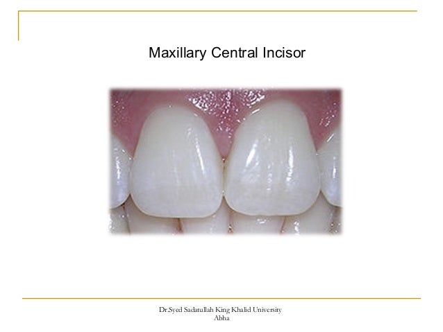 Morphology Of Maxillary Central And Lateral Incisors Teeth