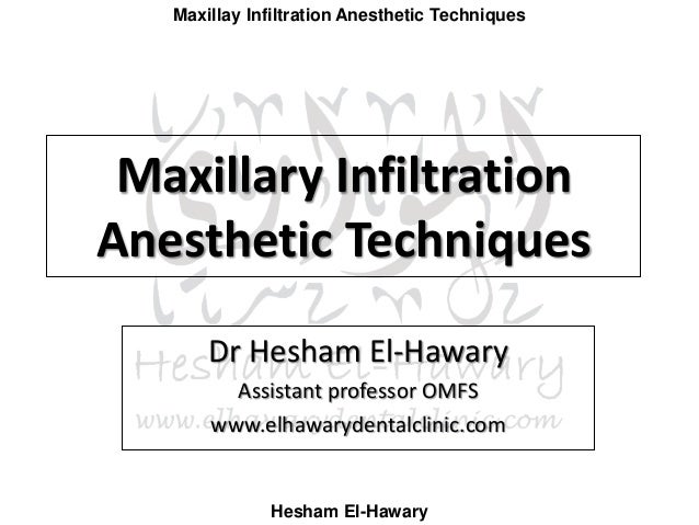 Maxillay Infiltration Anesthetic Techniques Hesham El-Hawary Maxillary Infiltration Anesthetic Techniques Dr Hesham El-Haw...
