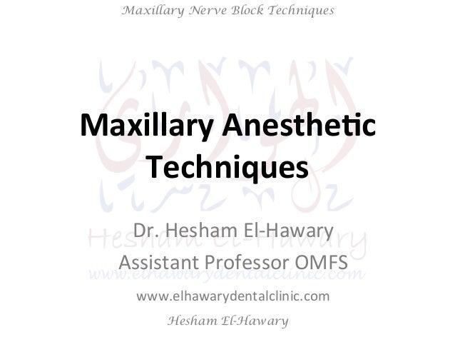 Hesham El-Hawary Maxillary Nerve Block Techniques Maxillary  Anesthe/c                       Techn...