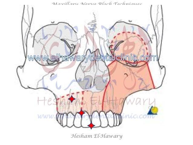 Maxillary Injections: Middle Superior Alveolar Nerve Block