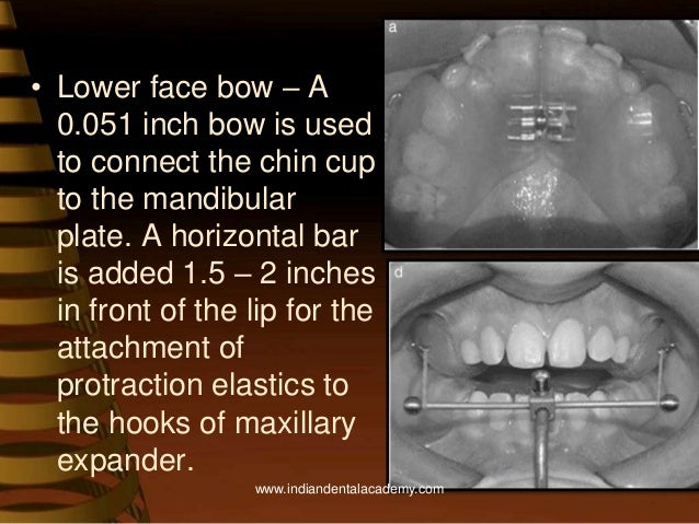 Maxillary protraction /certified fixed orthodontic courses by Indian…