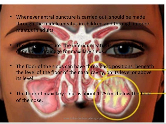 Maxillary sinus /certified fixed orthodontic courses by ... Inferior Meatus Drainage