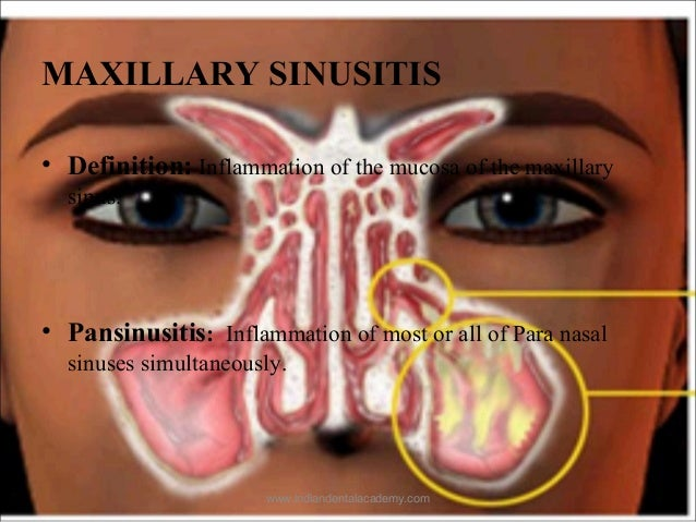 Maxillary sinus /certified fixed orthodontic courses by ... | 638 x 479 jpeg 88kB