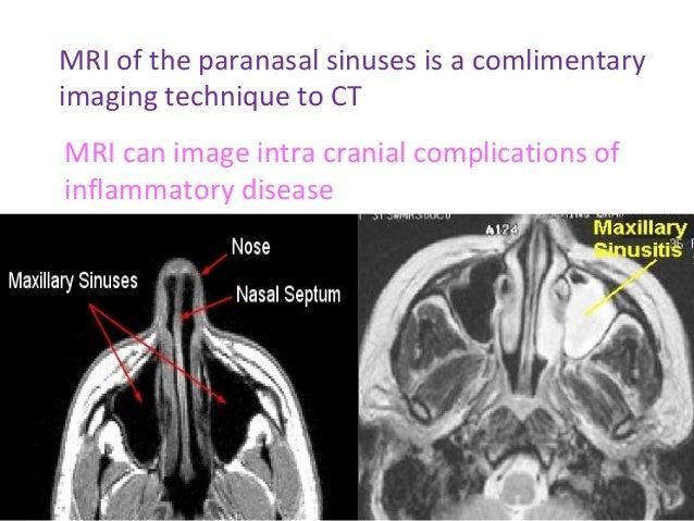 Radiology Of Maxillary Sinus