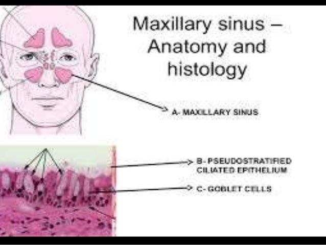 Anatomy of maxillary sinus