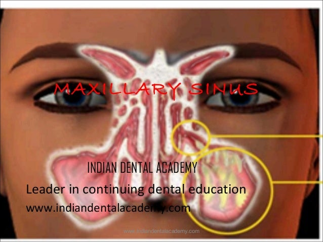 MAXILLARY SINUS  INDIAN DENTAL ACADEMY Leader in continuing dental education www.indiandentalacademy.com www.indiandentala...