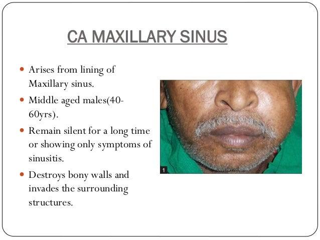 Maxillary sinus carcinoma