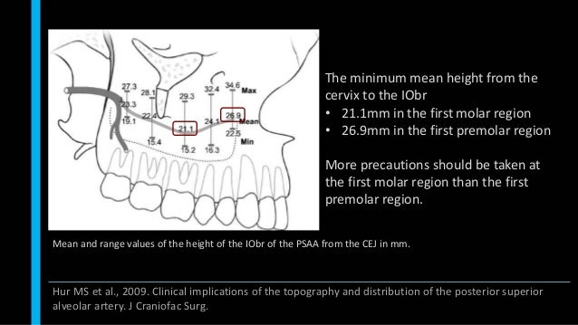 Mean and range values of the height of the IObr of the PSAA from the CEJ in mm. The minimum mean height from the cervix to...