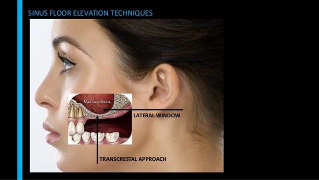 Sinus Floor Elevation And Implant Placement : Maxillary sinus floor elevation
