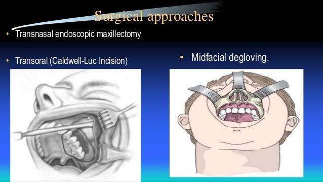 Facial degloving maxillectomy