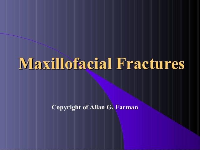 Maxillofacial Fractures    Copyright of Allan G. Farman