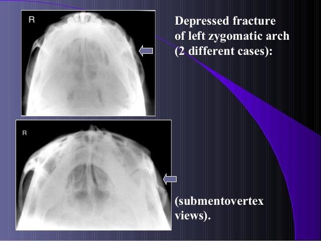 Maxillofacial Fractures
