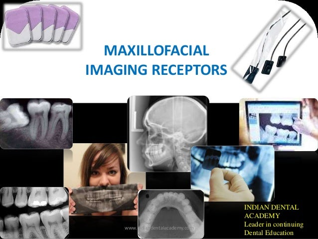 MAXILLOFACIAL IMAGING RECEPTORS INDIAN DENTAL ACADEMY Leader in continuing Dental Education www.indiandentalacademy.com