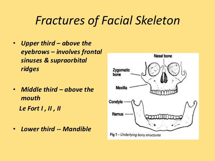 Share your fractures of the facial bones