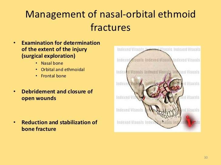 Imaging Of Facial Trauma Part 1
