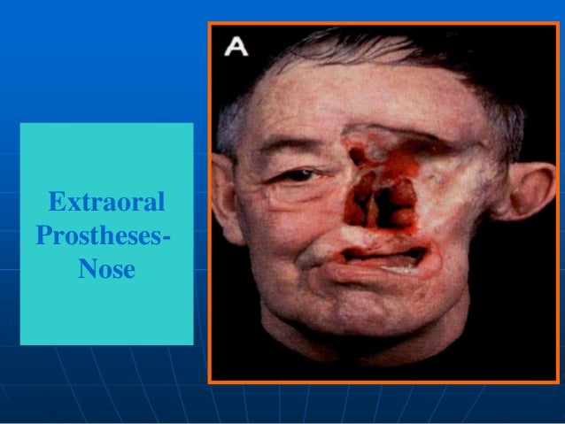 maxillofacial prothesis Maxillofacial prosthetics repair congenital trauma and trauma caused by accident or disease call our office in londonderry, nh, at (603) 965-3407 | londonderry, nh.