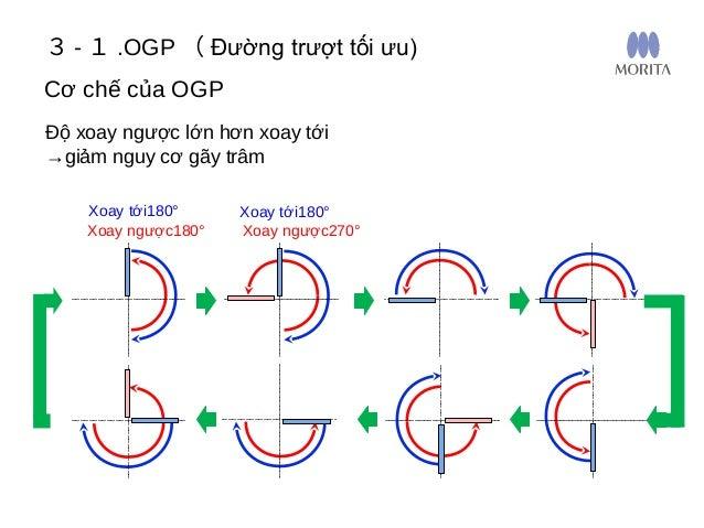 Tránh làm thẳng ổng tủy cong: Sự vận hành 3 - 1 .OGP ( Đường trượt tối ưu)