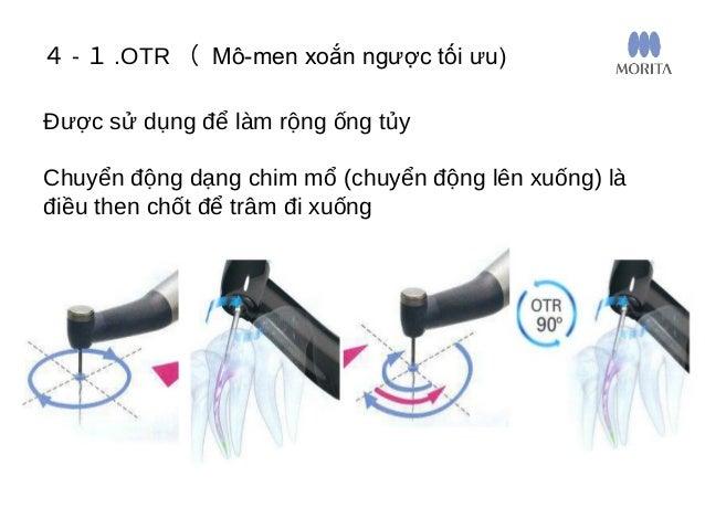 Cơ chế OTR 4 - 1 .OTR ( Mô-men xoắn ngược tối ưu) Khi lực xoắn đạt đến giá trị nhất định, mô-tơ sẽ thực hiện lặp lại việc ...