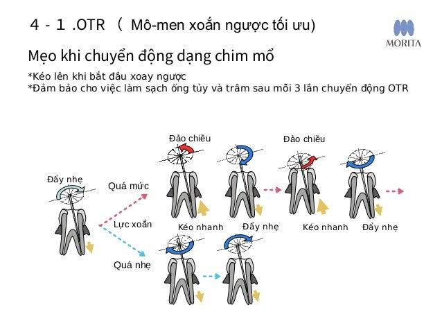 Dùng khối nhựa thử nghiệm nội nha có thước đo 4- 2 . Thực hành OTR ( Mô-men xoắn ngược tối ưu) Bước 1. M3: đường trượt tạo...