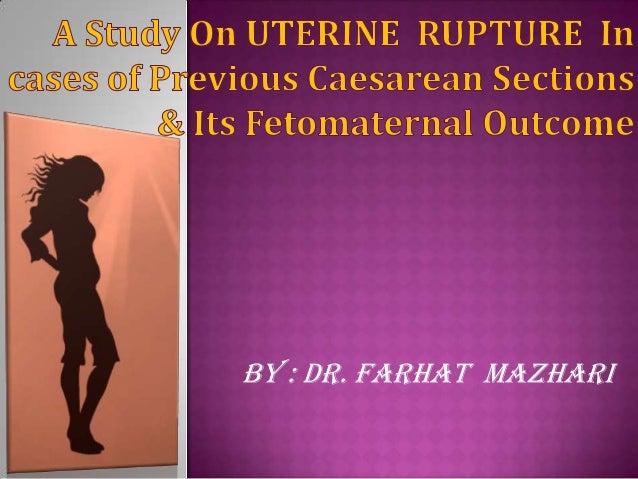 BY : DR. FARHAT MAZHARI