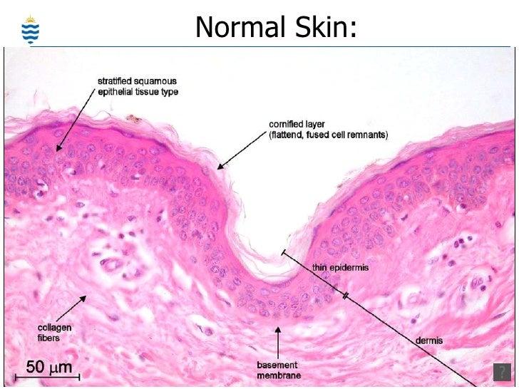 healing eczema without steroids