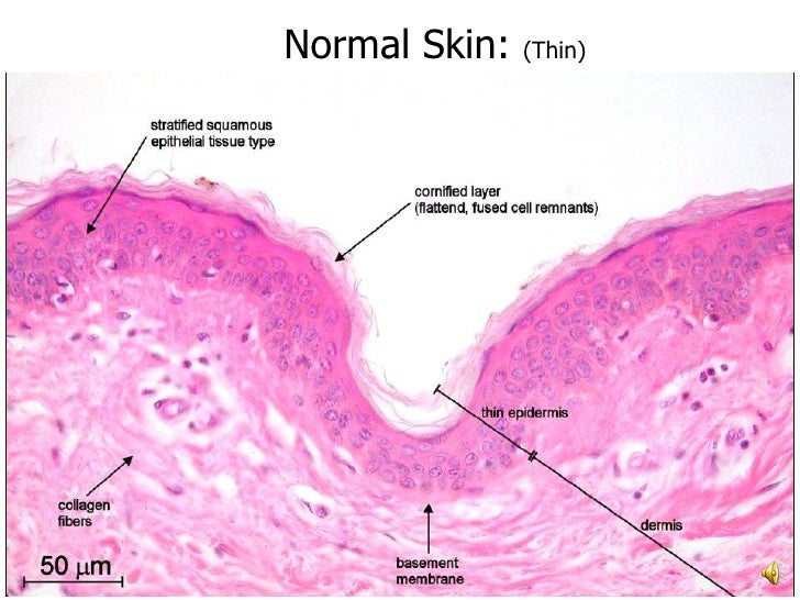 Pathology of Skin - Common Disorders