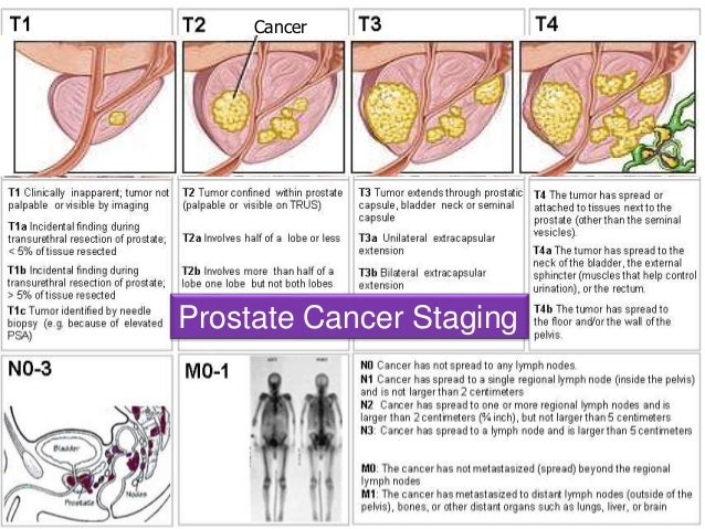 prostate cancer pathology and effects Postoperative treatment after a radical prostatectomy by william j catalona, md doctors and patients alike hope that removing the prostate, a radical prostatectomy (rp), will be a successful, life-long treatment for prostate cancer.