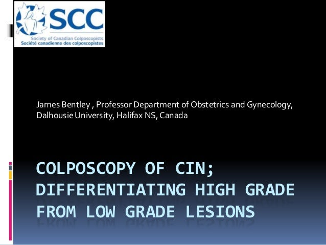 COLPOSCOPY OF CIN; DIFFERENTIATING HIGH GRADE FROM LOW GRADE LESIONS James Bentley , Professor Department of Obstetrics an...