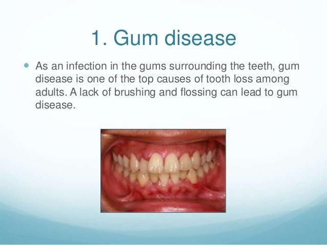 2 1 Gum Disease
