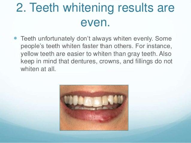 8 Common Myths Surrounding Teeth Whitening
