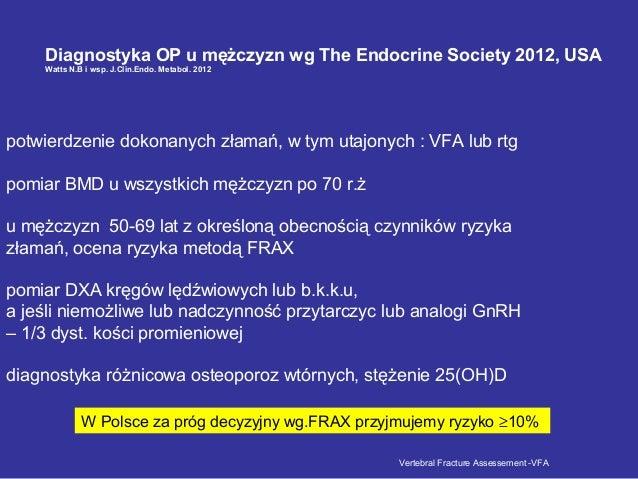 Diagnostyka OP u mężczyzn wg The Endocrine Society 2012, USA Watts N.B i wsp. J.Clin.Endo. Metabol. 2012 potwierdzenie dok...