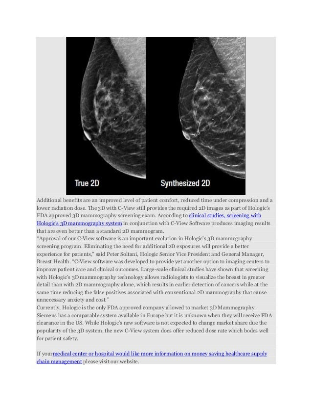 Tomosynthesis fda approval