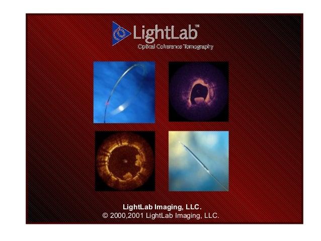 LightLab Imaging, LLC. © 2000,2001 LightLab Imaging, LLC.